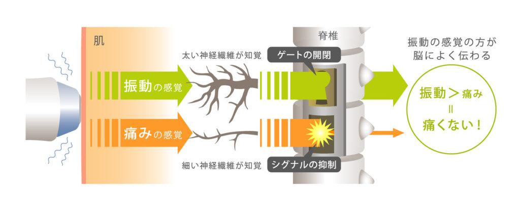サーマクールCPTゲートコントロール