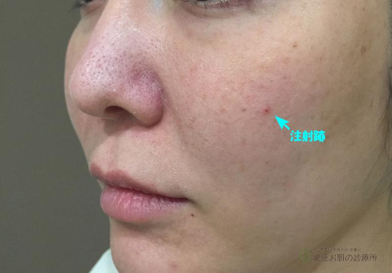 頬ヒアルロン酸注射跡