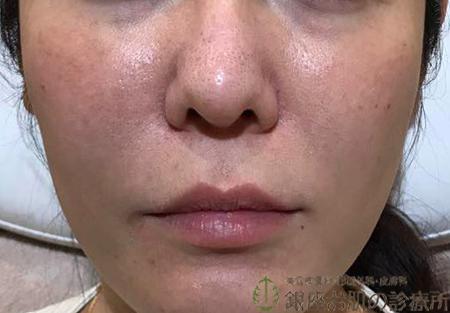 頬ヒアルロン酸両側治療後