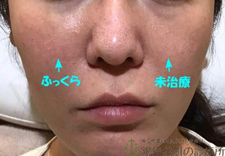 頬ヒアルロン酸片側注入