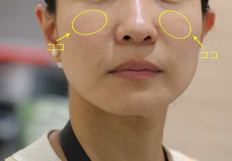 頬のこの部分