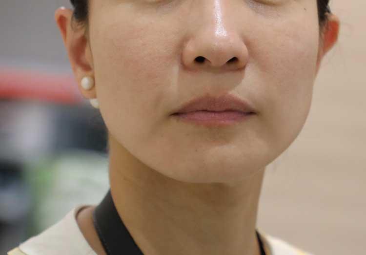 ヒアルロン酸頬の参考写真