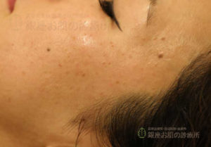 顔イボ治療前