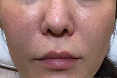 頬ヒアルロン酸両側治療