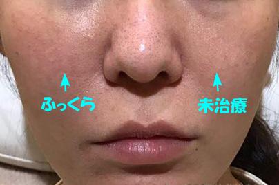 頬ヒアルロン酸片側治療