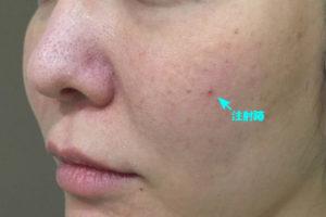 頬ヒアルロン酸治療後