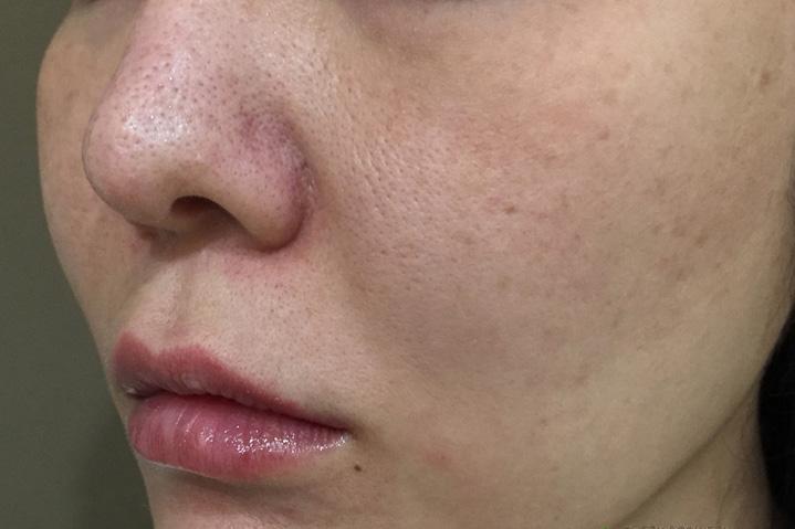 頬ヒアルロン酸治療前