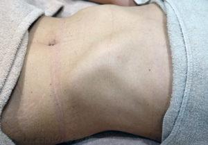 イボレーザー治療1か月後